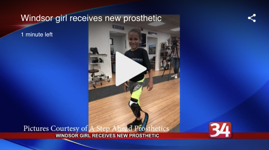little girl gets prosthetic leg
